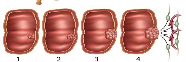 مراحل سرطان القولون والمستقيم وعلاجه
