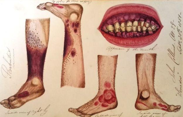 مرض الاسقربوط - نقش